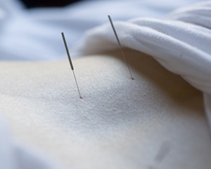 acupuncture at pacific rim college